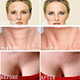 Forehead Neck Chest Wrinkle Remover Anti Wrinkle