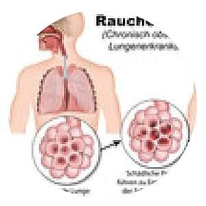 alfombrilla de ratón Enfermedad pulmonar obstructiva crónica, enfermedad pulmonar obstructiva crónica - ronda - 20cm