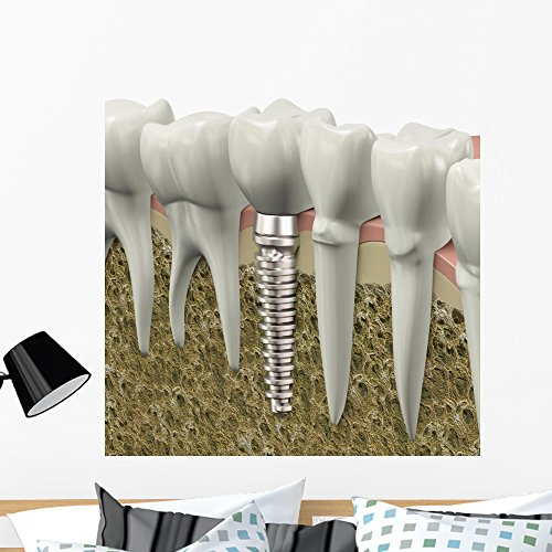 Wallmonkeys Dental Implant Wall Decal Peel And Stick Business Graphics  36 In H X 36 In W  Wm400536