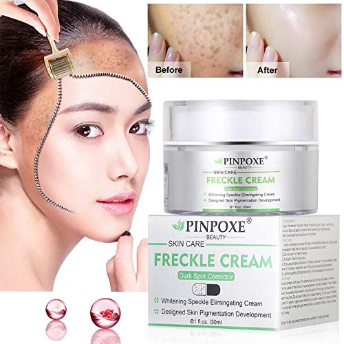 Skin Brightening Cream,Freckle cream,Dark Spot Corrector Remover (Best Dark Spot Removal Cream)
