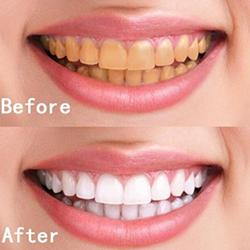 Price comparison product image Ourhomer 2018 10 ML Teeth Whitening Smile Hygiene Cleaning Teeth Care Natural Tooth Cleaning Whitening Water