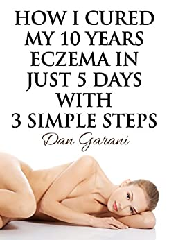 Eczema forever natural treatment remedies ebook product image