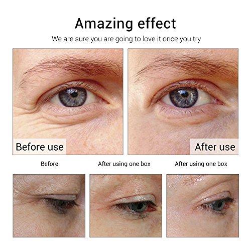 Anti-Aging Eye Serum Beauty and Skin Care Capsule 24K Gold Peptide Wrinkles Eye Ampoule Capsule Eye Serum Fine Lines Dark Circle Eye Patches- 30 capsules by LANBENA (Image #4)