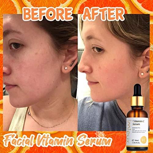 51omJeI2QAL - kitt Facial Vitamin Serum 30ml, Dark Spots Corrective Moisturizing Firming Repair Scar Facial Serum - Anti-Aging, Whiten, Brighten Skin (Multicolor)