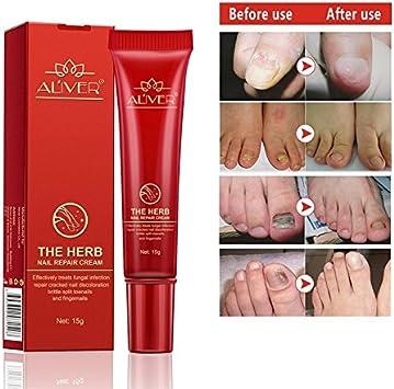 Aliver Hierba - Crema de solución de infección de uñas anti hongos potente y premium para eliminar y matar hongos en las uñas para uñas de pies y uñas - efectiva contra el 99.9% de hongos en las uñas.