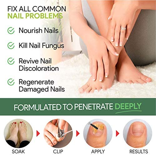 EXTRA STRONG Nail Fungus Treatment -Made In USA, Best Nail Repair Set, Stop Fungal Growth, Effective Fingernail & Toenail Health Care Solution, Fix & Renew Damaged, Broken, Cracked & Discolored Nails 51onnMAwB9L