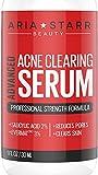 Aria Starr Anti Acne Treatment Serum & Pores Minimizer - BEST For Face, Stubborn Acne, Blackheads & Blemishes