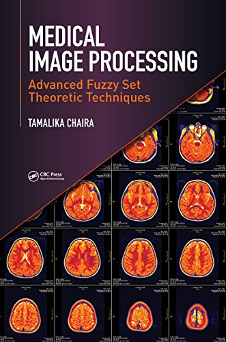 Medical Image Processing: Advanced Fuzzy Set Theoretic Techniques (English Edition)