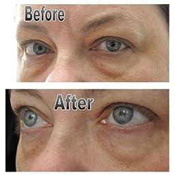 amazoncom glamglow brightmud eye treatment beauty