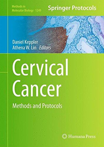 Cervical Cancer: Methods and Protocols (Methods in Molecular Biology)