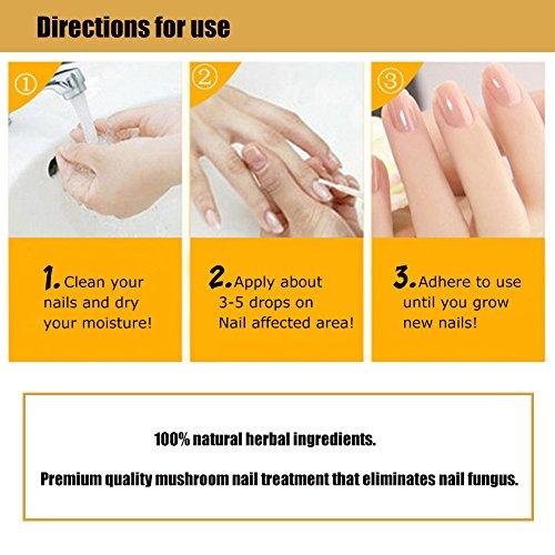 Nail Fungus Oil Nail Care,Nail Fungus Treatments,Fungus Stop,Nail Care Treatment of Anti-Fungal Solution,Effective against nail fungus 30ml by Cherioll (Image #4)