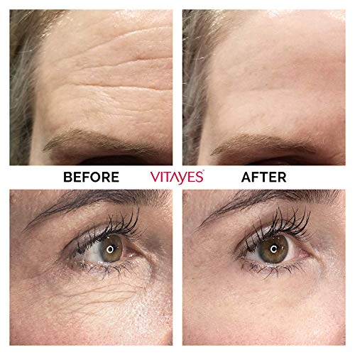 Vitayes Instant Ageback | Rapid effect on Dark Circles & Under-eye Bags & Puffiness | Visibly Reduce Signs of Aging Wrinkles & Fine Lines & Crow's Feet Around Eye | 15 ml 0.53 oz