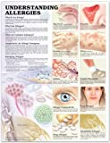 Understanding Allergies Anatomical Chart, Anatomical Chart Company Staff, 1587792990