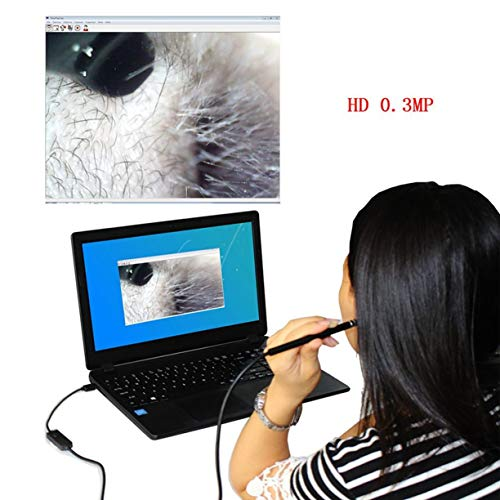 Medical Endoscope 0.3MP High Definition Inspection Snake Tube Pipe Camera for Visible Ear Cleaning for Laptop Phone by Detectoy (Image #3)