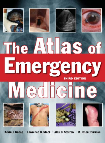 The Atlas of Emergency Medicine, Third Edition Pdf