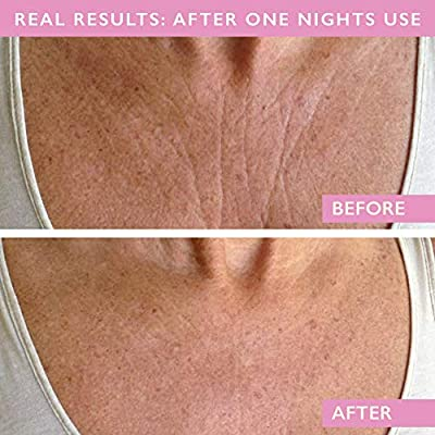 Wrinkles Schminkles Chest Wrinkle Pads - Made in USA 1 Month Supply - Reusable Decollete Wrinkle Treatment Patches - Hypoallergenic 100% Medical Grade Silicone - Correct Decolletage Wrinkles Overnight