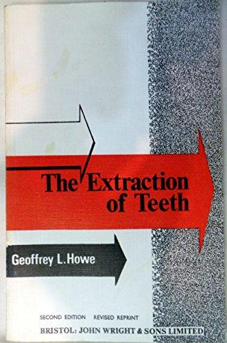 Extraction of Teeth