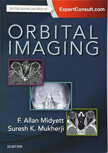The 9 best orbital imaging for 2019