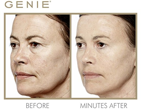 Genie Instant Line Smoother by Genie Beauty Products (Image #4)