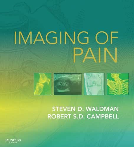 Imaging of Pain E-Book (Expert Consult Title: Online + Print)