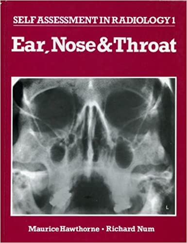 Ear, Nose and Throat: [Part] 1 (Radiology & Imaging Self Assessment)