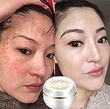 Singapore Whitening Cream Flawles face Cream Moisturizer Cream Freckle Removal Skin Lightening Whitening
