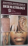 img - for Diagnostic Picture Tests in Dermatology book / textbook / text book