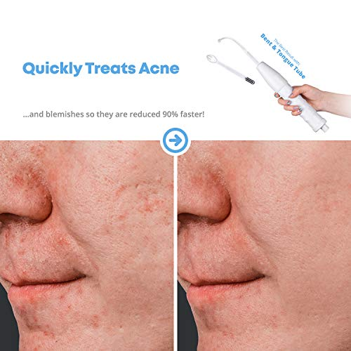NuDerma Portable Handheld High Frequency Skin Therapy Wand Machine w/Neon -  Acne Treatment - Skin Tightening - Wrinkle Reducing - Dark Circles - Puffy