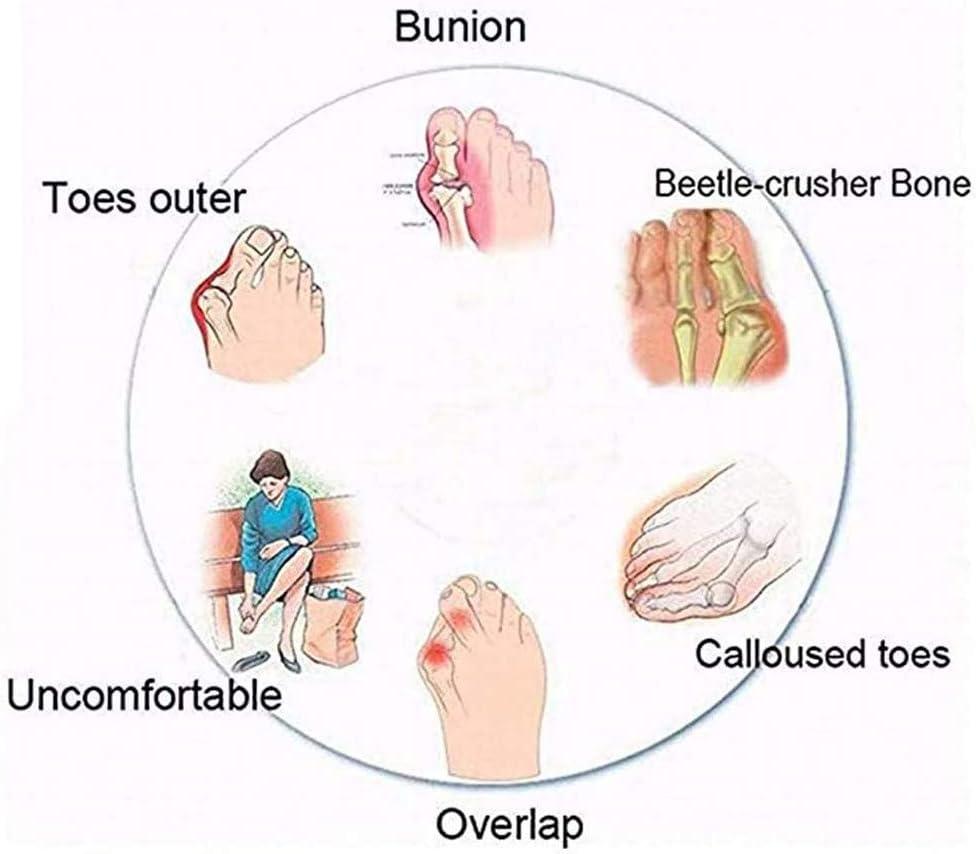 dehuiya Correction Sandale Chaussures Orthop/édique Respirante Peep Toe,Bunion Splint Pantoufles Soulagement De La Douleur Femmes Plateforme Sandale