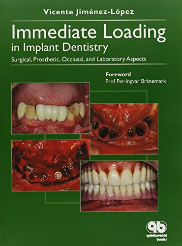 Immediate Loading In Implant Dentistry: Surgical, Prosthetic, Occlusal, And Laboratory Aspects