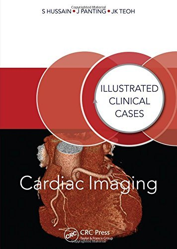 Cardiac Imaging: Illustrated Clinical Cases by Shahid Hussain (2014-05-27)