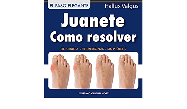 Juanete - Resolver sin cirugía (Spanish Edition) - Kindle edition by Gustavo Guglielmotti. Professional & Technical Kindle eBooks @ Amazon.com.