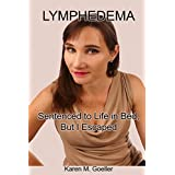 Lymphedema: Sentenced to Life in Bed, But I Escaped