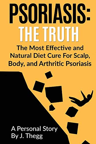 Psoriasis: The Truth: The Most Effective and Natural Diet Cure for Scalp, Body, and Arthritic Psoriasis (1) (Volume 1)
