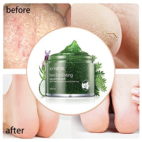 (SKYMORE Foot Scrub Gel, Callus Remover Gel,Foot Exfoliating Scrub Gel, Foot Moisturizer With Natural Phytoextraction Particles, 5.07 Fl.Oz)