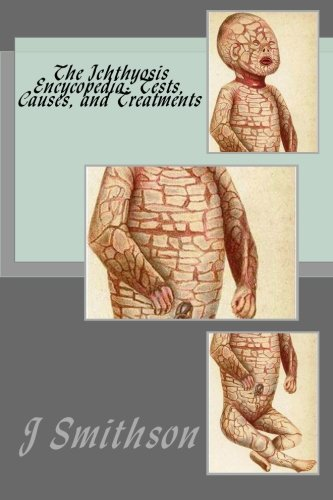 The Ichthyosis  Encycopedia: Tests, Causes, and Treatments ebook