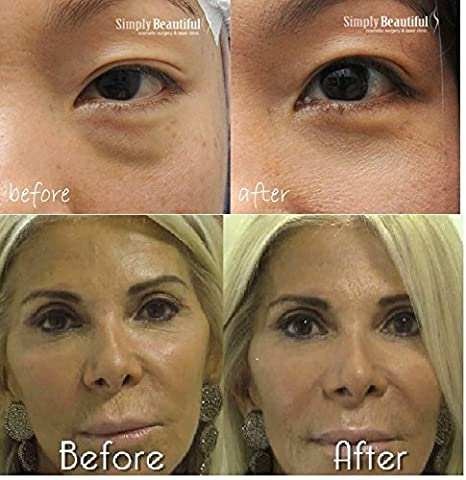 crema anti arrugas de ojos bolsa!!! efecto instantáneo ...