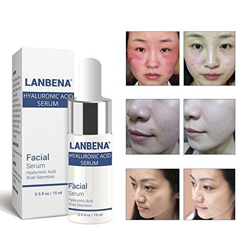 Fanmin Hyaluronic Acid Serum, Snail Essence,Anti-Aging Hydration Moisturizer Facial Serum, Oil-control Essence