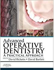 Advanced Operative Dentistry: A Practical Approach