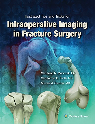 Illustrated Tips and Tricks for Intraoperative Imaging in Fracture Surgery - medicalbooks.filipinodoctors.org