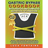 COMPLETE 3 STAGE WEIGHT LOSS SURGERY RECOVERY MEAL PLAN WITH PHOTOS, SERVING SIZE, AND NUTRITIONAL INFORMATION FOR EVERY SINGLE RECIPE!  Kindle MatchBook: Buy the paperback edition and get the Kindle edition FREE!  REGULAR PRICE: $14.99 | LIMITED TIM...