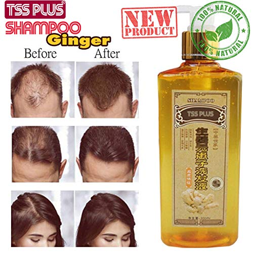 TSSPLUS NEW Ginger Genuine Professional Hair ginger Shampoo, Hair regrowth Dense Fast, Thicker,hair growth,conditioner,Anti Hair Loss Product