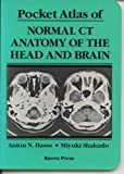 img - for Pocket Atlas of Normal CT Anatomy of the Head and Brain by Anton N. Hasso (1990-07-01) book / textbook / text book
