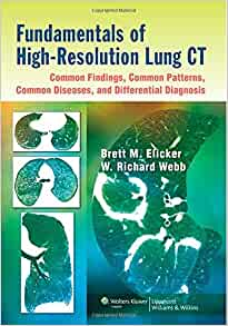 Enhancing the diagnosis and management of COPD in Primary care