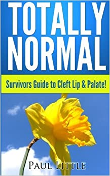 Totally Normal: Survivors Guide to Cleft Lip & Palate! by Dr Paul B Little (2013-09-01)