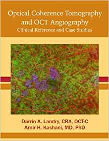 optical coherence tomography and oct angiography clinical