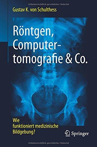 rntgen-computertomografie-co-wie-funktioniert-medizinische-bildgebung