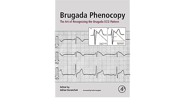 Brugada Phenocopy: The Art of Recognizing the Brugada ECG ...