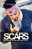 img - for Scars: We all have them, it's what we do with them that counts book / textbook / text book