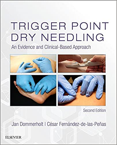 Trigger point dry needling an evidence and clinical based approach trigger point dry needling an evidence and clinical based approach 2nd edition fandeluxe Gallery